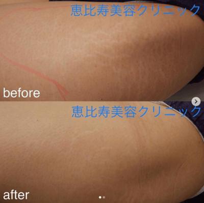 太ももの肉割れを消す施術(例)恵比寿美容クリニック